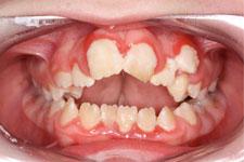 Preventing gum disease 1